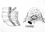 лечение лазером в ульяновске